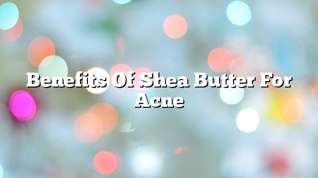 Benefits of Shea butter for acne