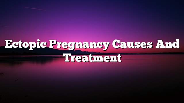 Ectopic pregnancy causes and treatment