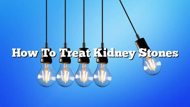 How to treat kidney stones