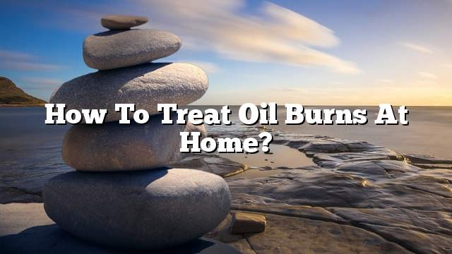 How to treat oil burns at home?