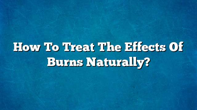 How to treat the effects of burns naturally?