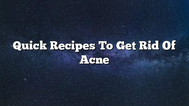 Quick recipes to get rid of acne