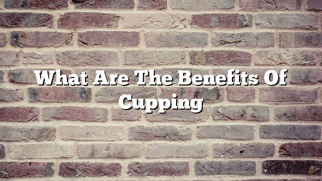 What are the benefits of cupping