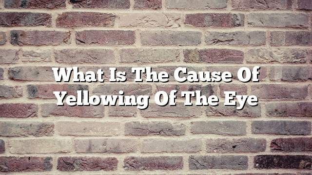 What is the cause of yellowing of the eye